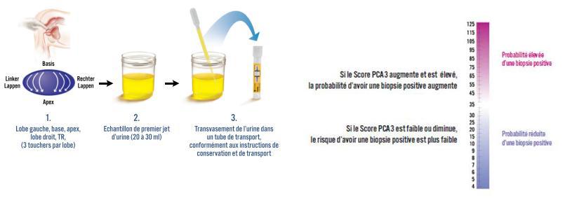 image PCA3